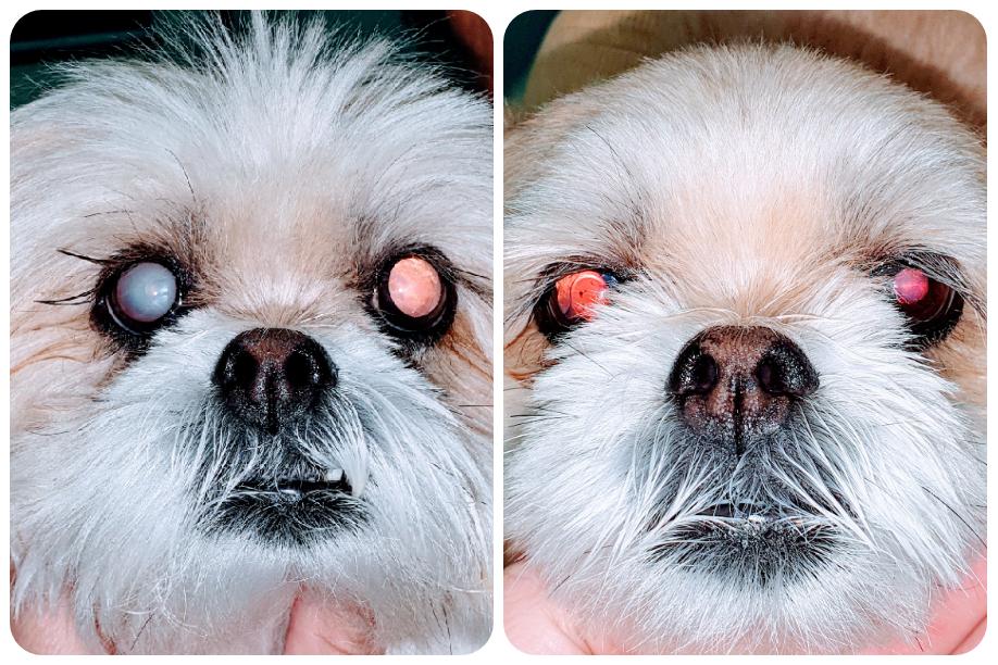 Catarata unilateral antes e depois da cirurgia