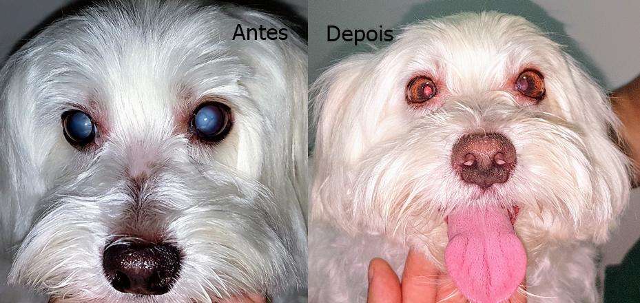 Catarata antes e depois da cirurgia