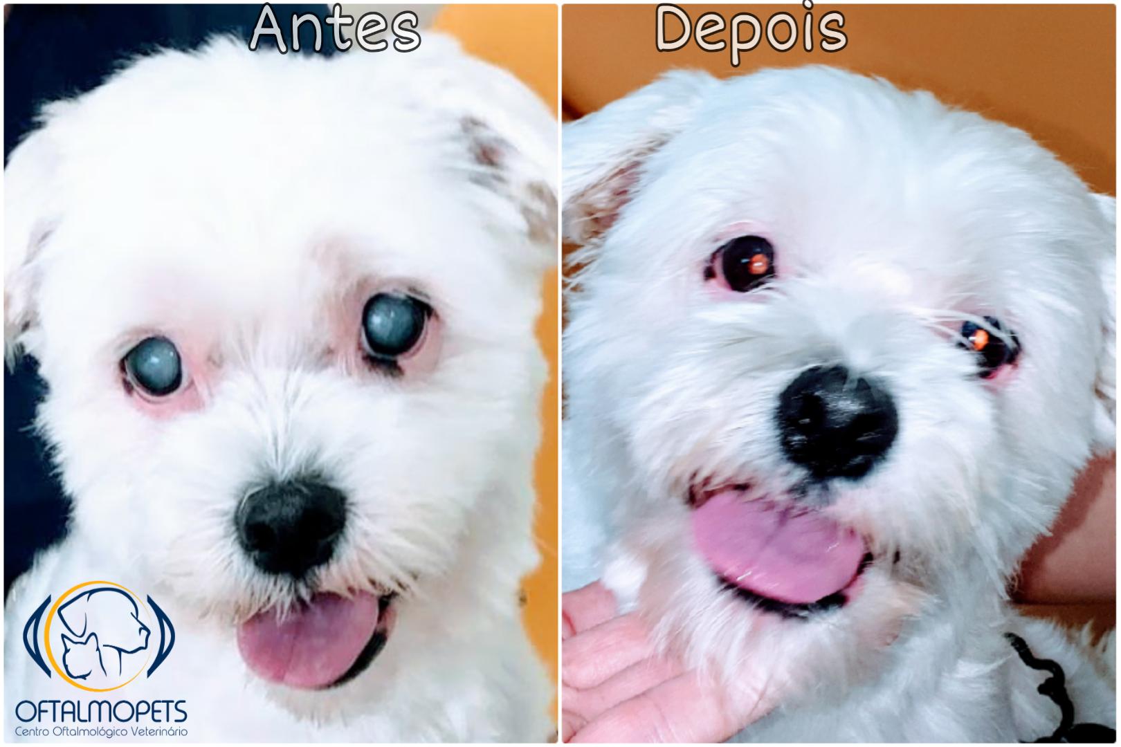 antes e depois catarata diabética hipermatura