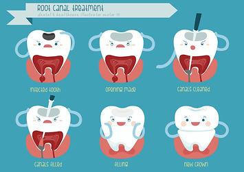 root-canal-procedure.jpg