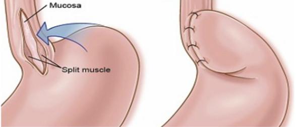 Heller myotomy