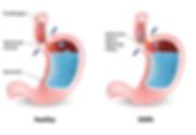 Reflux Anatomy