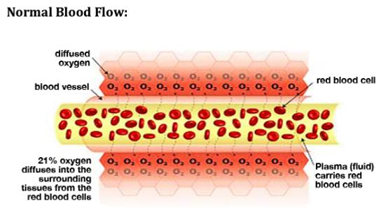 Normal Blood Flow.png