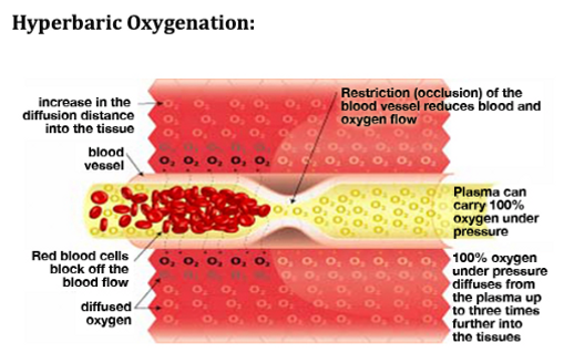 Hyperbaric Oxygenation.png
