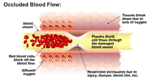 Occluded Blood Flow.png