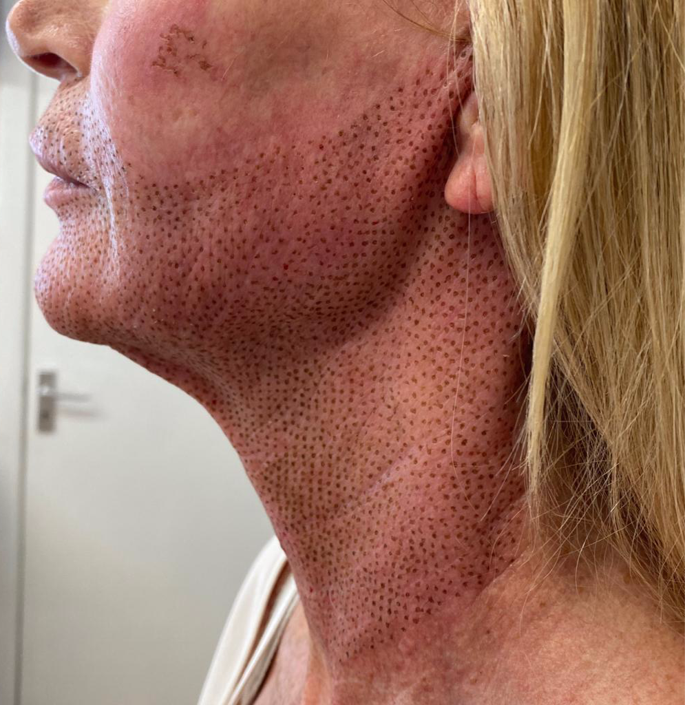 Neck with fat dissolve