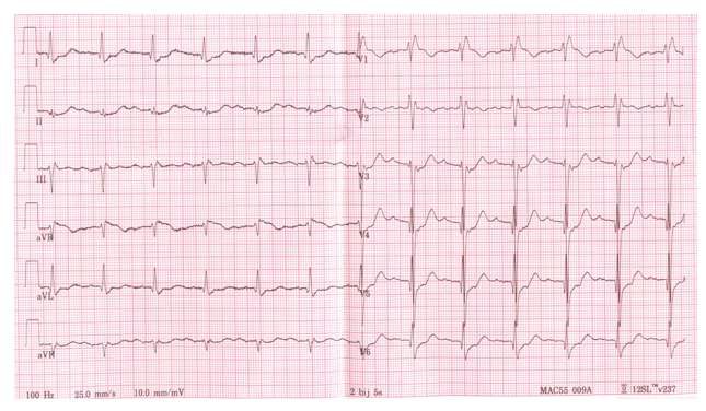 Is that a normal EKG tracing?