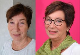 Før og etterbilde av Solveig