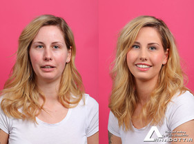 Før og etterbilde av Heidi.jpg
