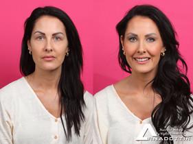 Før og etterbilde av Line