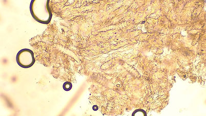 ニキビダニ|免疫異常|皮膚科|西山動物病院|流山市・松戸市・柏市