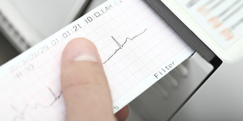 Electrocardiograma Sencillo