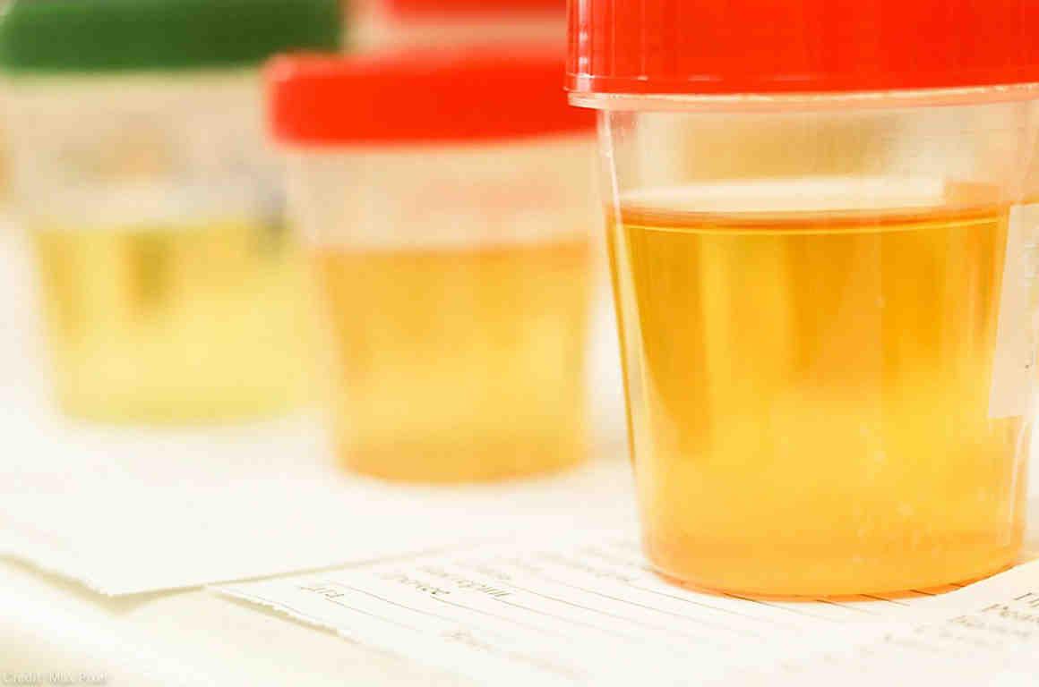 Baciloscopia 5 muestras Orina
