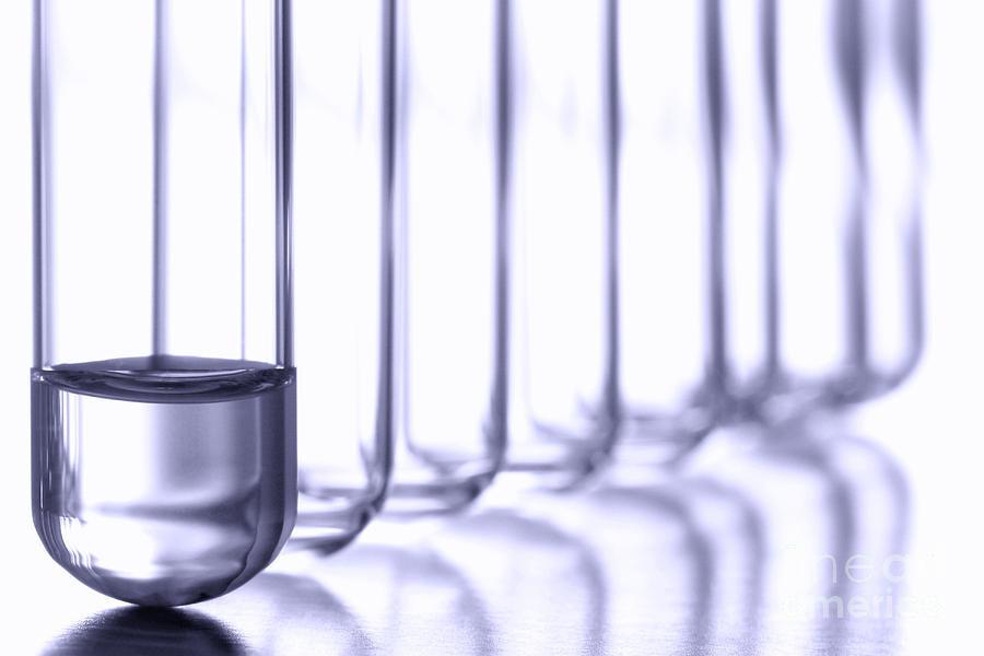 Citoquímico de líquido de mediastino
