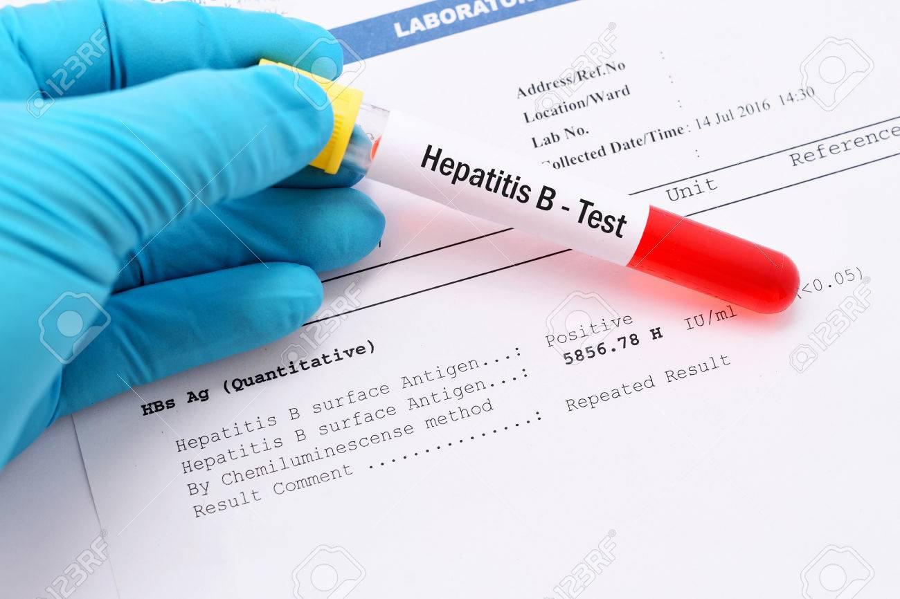 Hepatitis B (aHBs)