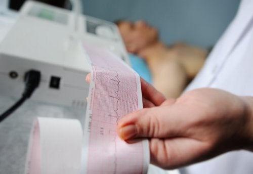 Electrocardiograma con Interpretación