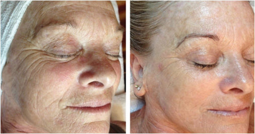 DMK, Skin Revision, Aging Treatment, DMK Skin Revision, beauty salon, facial spa, spa, health spa,