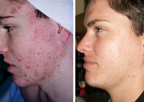 acne, acne treatment