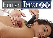 human_tecar_terapia.jpg