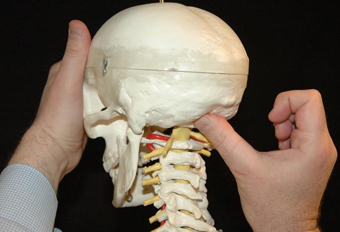 bravo dottore osteopata e fisioterapista a cagliari che cura il mal di testa ed emicrania in poche sedute