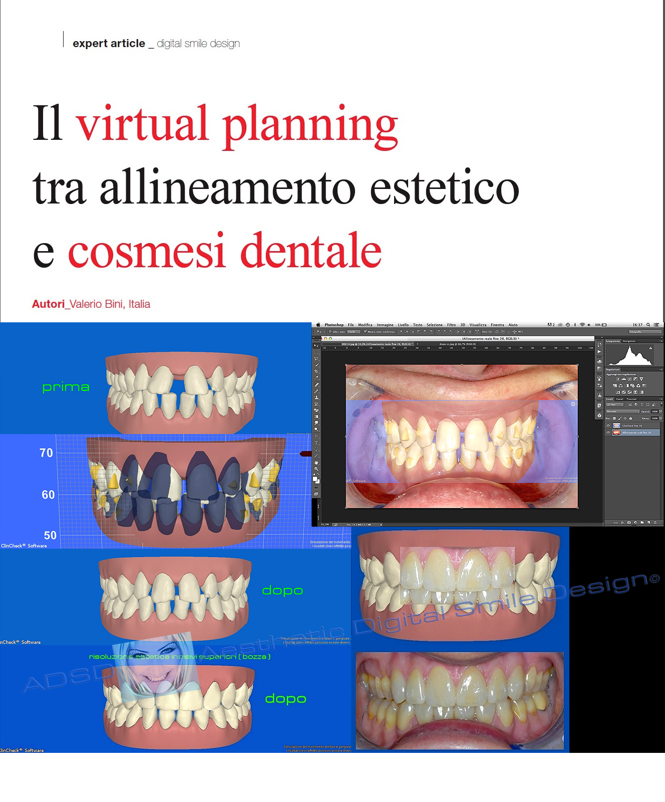 Virtual Planning ADSD & ClinCheck Invisalign