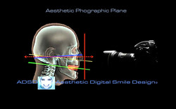 Aesthetic Ph Plane to ADSD