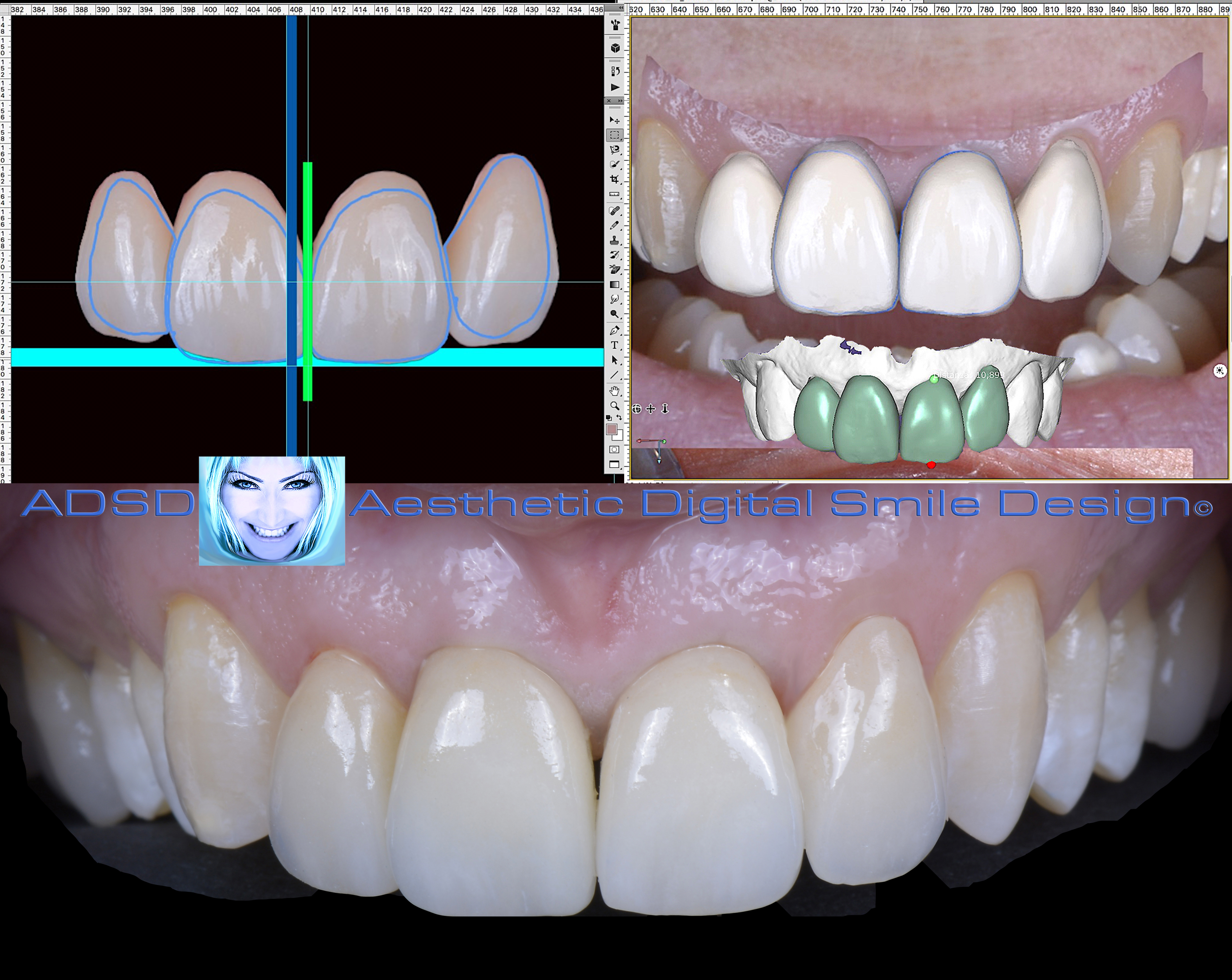 Aesthetic Digital Smile Design ADSD