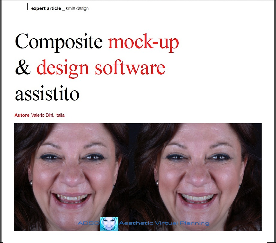 Composite Mock Up & Design Software Assistito