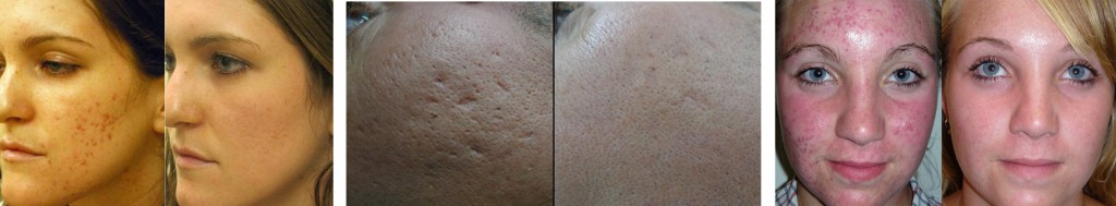 lang-b4-after-acne-scars-skinpen-1024x189