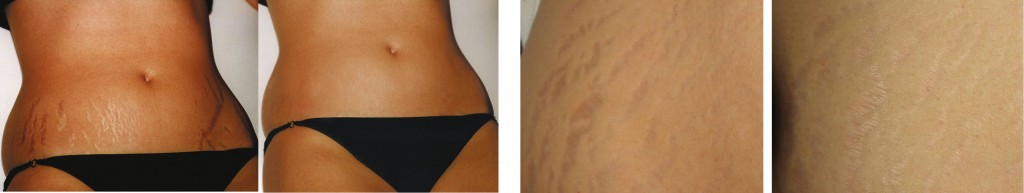 stretchmarks-b4-after-skinpen-copy-1024x193