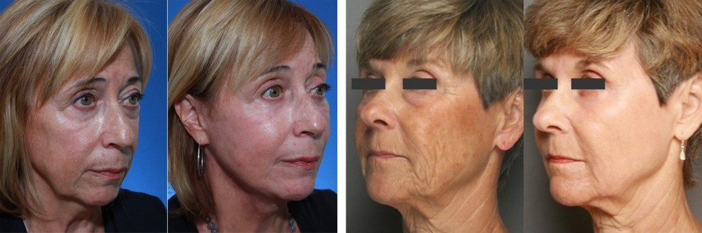 bf-after-rejuvenation-skinpen-copy-1024x340