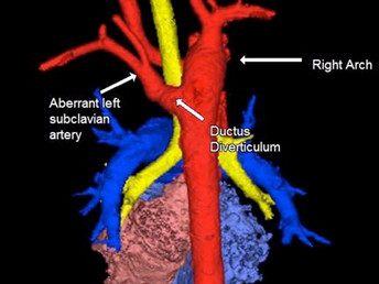 Vascular Ring with Unique Anatomical Variant Elucidated Using 3D Technology