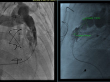 Extreme Distortion of the Aorta: A Relative Contraindication for Transcathether Valve Implantation
