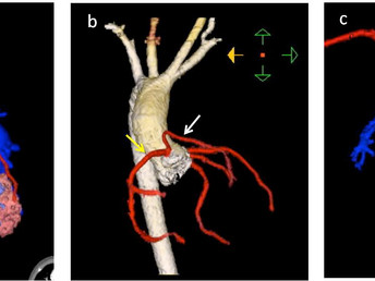 Surgical-Relevant Coronary Artery Anomalies Diagnosed by Cardiac Computed Tomographic Angiography