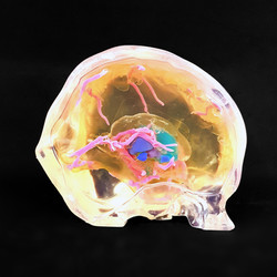 Deep brain simulator