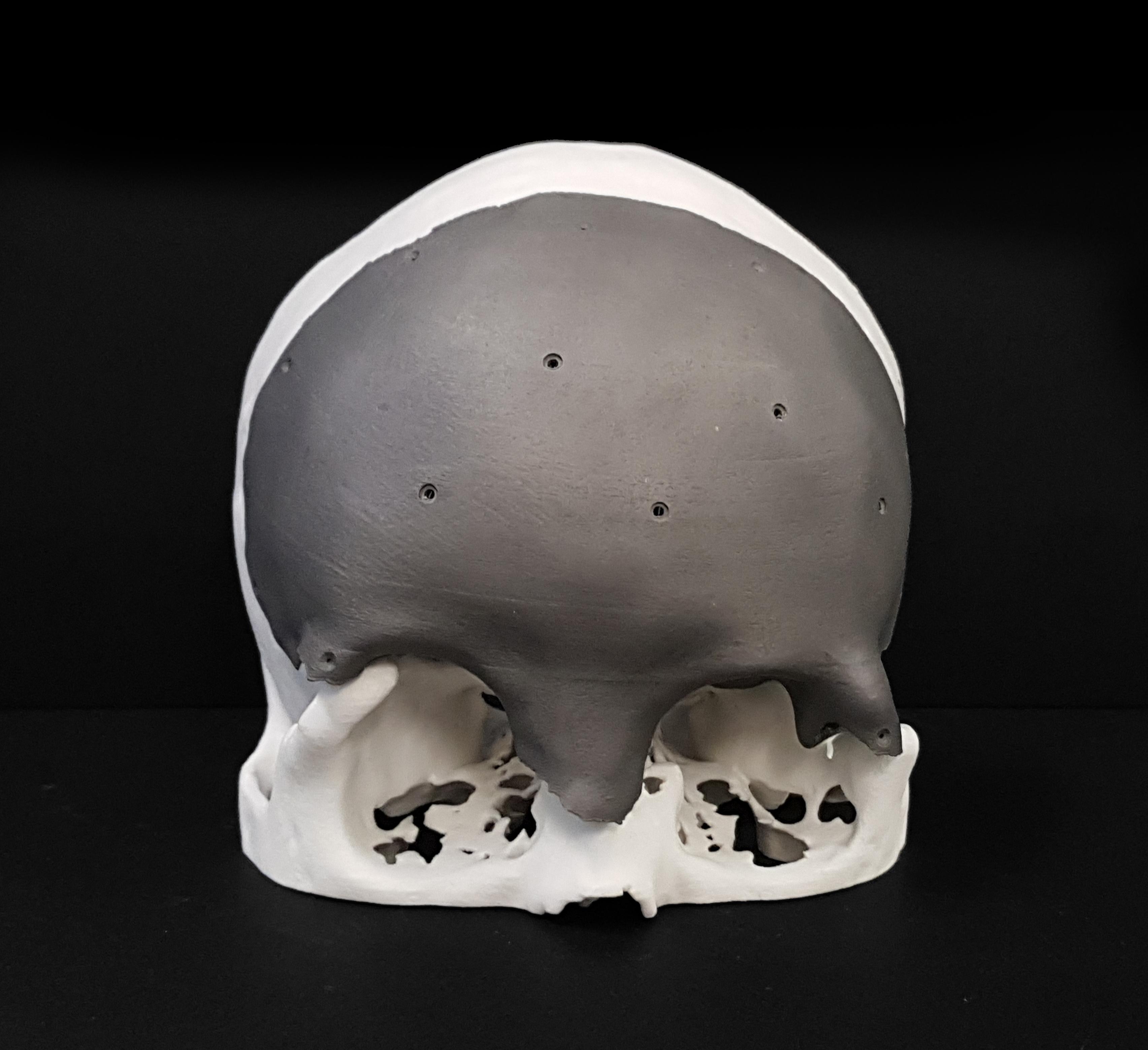 Frontal bone imaplant