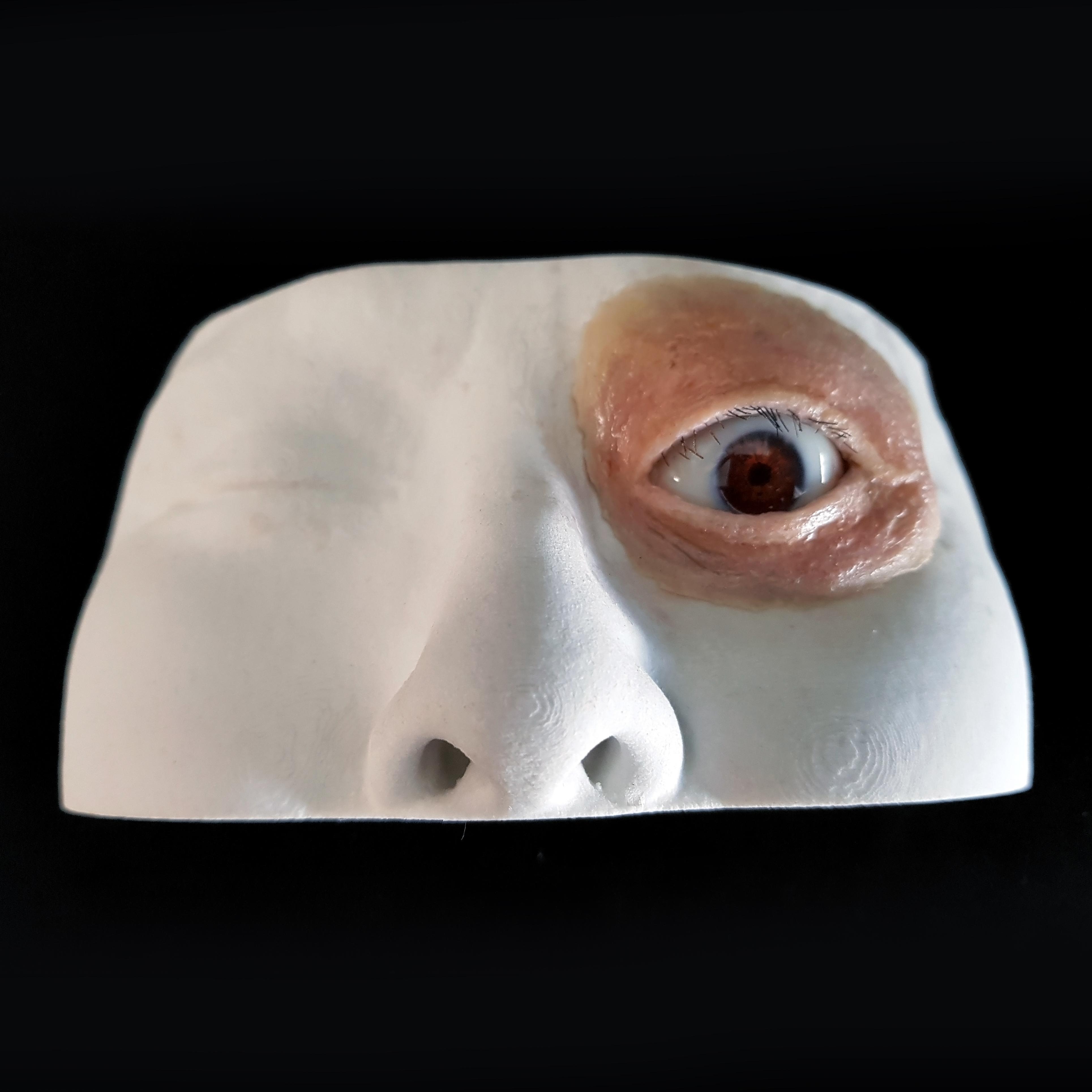 Facial defect-eye