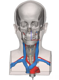 Cricothyroidotomy phantom