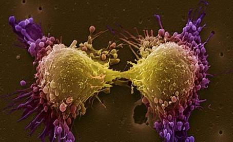 Anti-oestrogens inhibit colorectal tumourigenesis