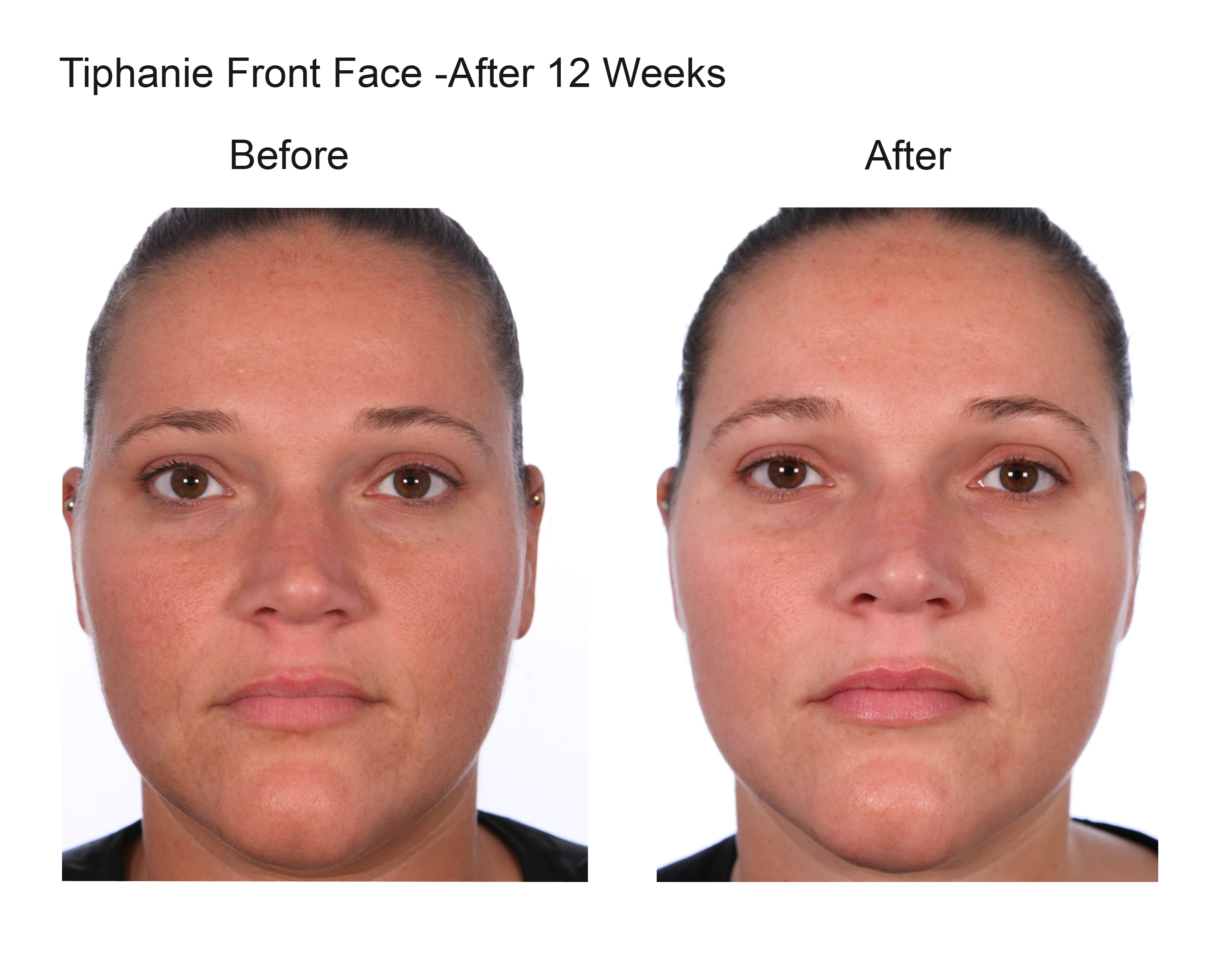 Tiphanie Front Face After 12 Weeks