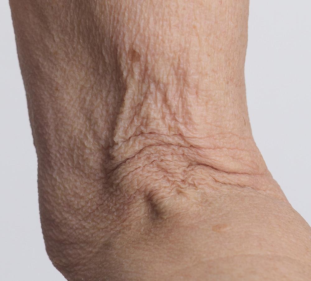 crapey skin on arms kellie olver