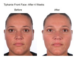 Tiphanie Front Face After 4 Weeks