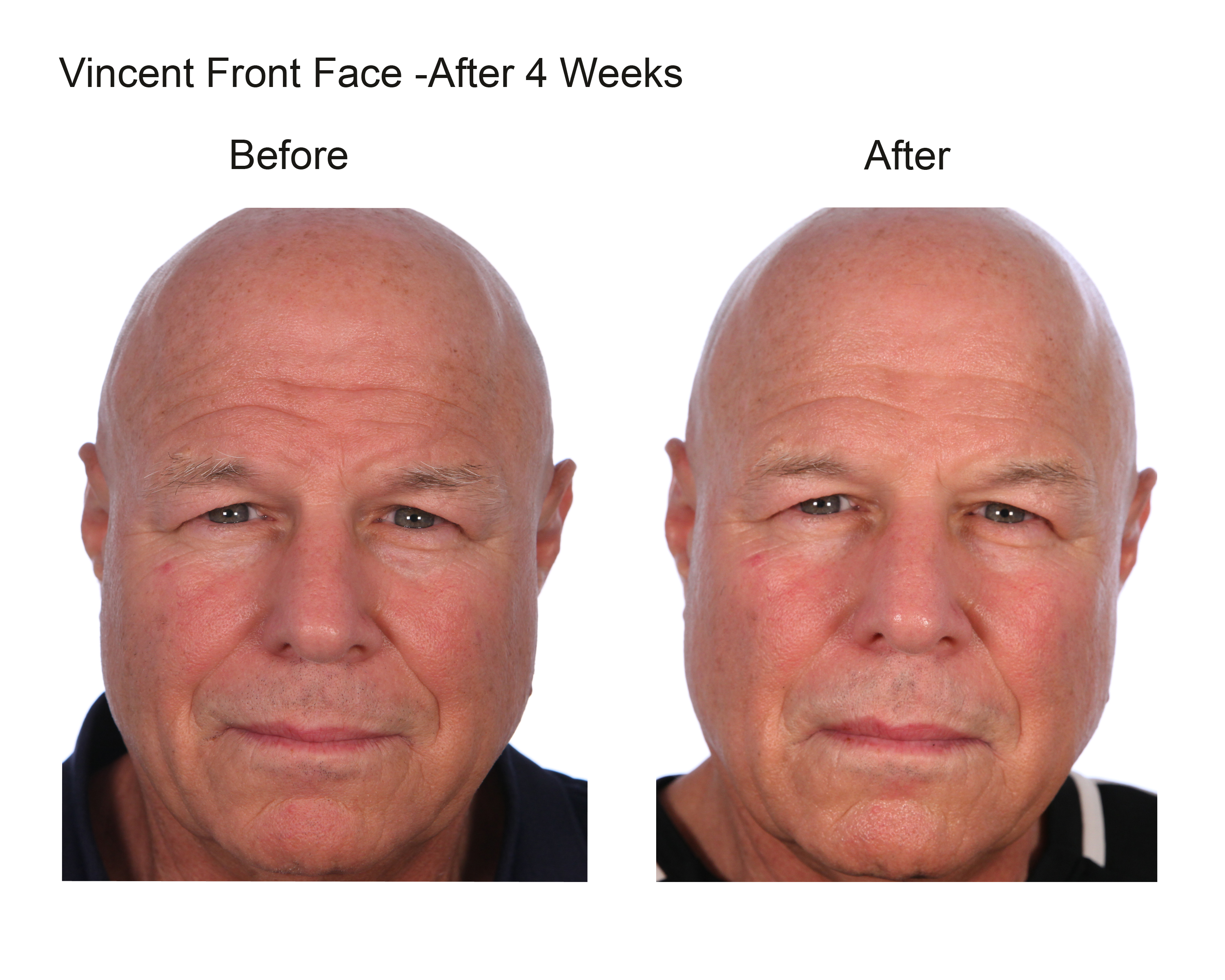 Vincent Front Face After 4 Weeks