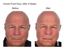 Vincent Front Face After 4 Weeks