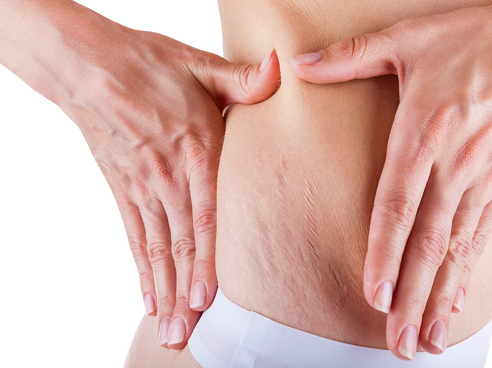 How to Prevent Stretch Marks After Weight Loss – 5 strategies that work.