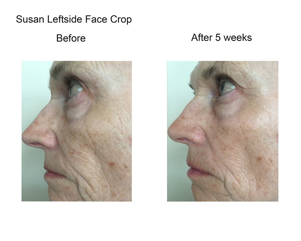 Before&After Pictures Using CrepeySkinFX for Face