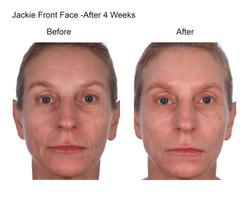 Jackie Front Face After 4 Weeks