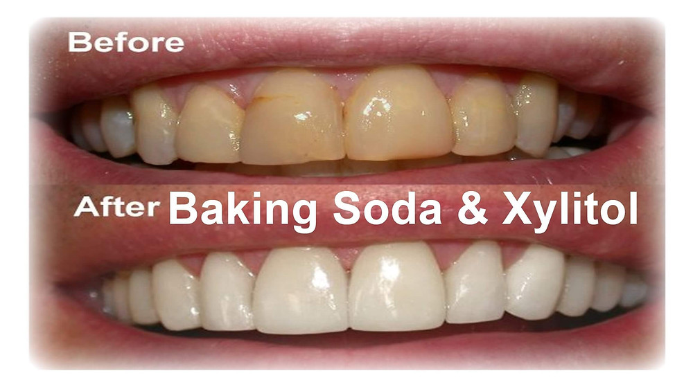 Baking Soda and Xylitol