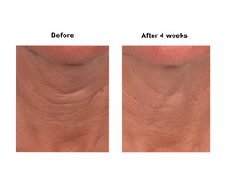 Neck, front