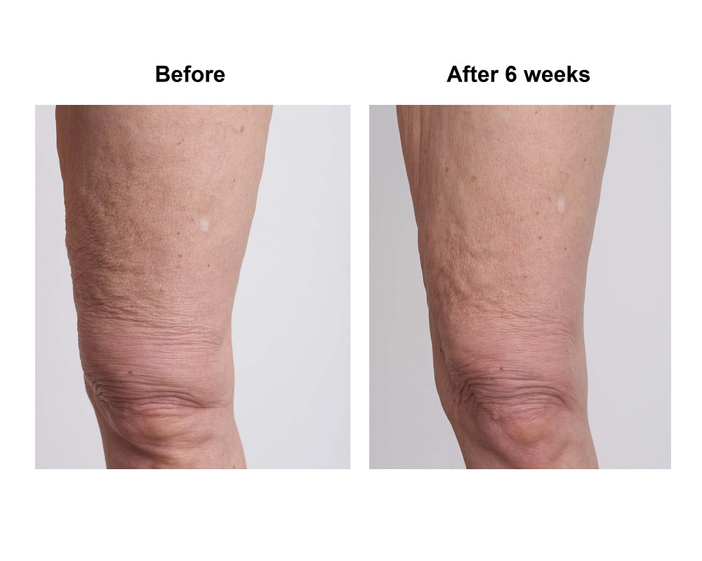 Before&After Picture Crepey Skin Legs